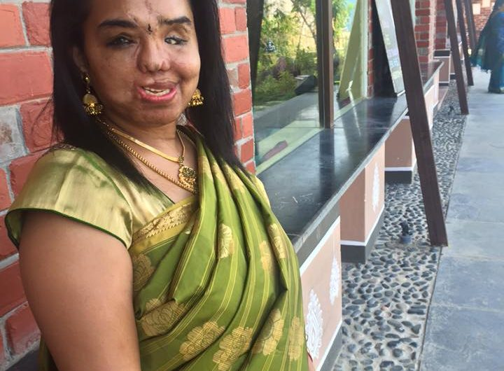 Sunitha Atinus on being alive after an accident